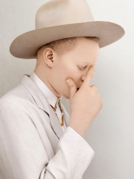 Albinism thinker